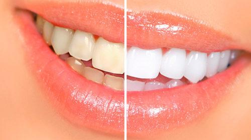 Современное отбеливание зубов