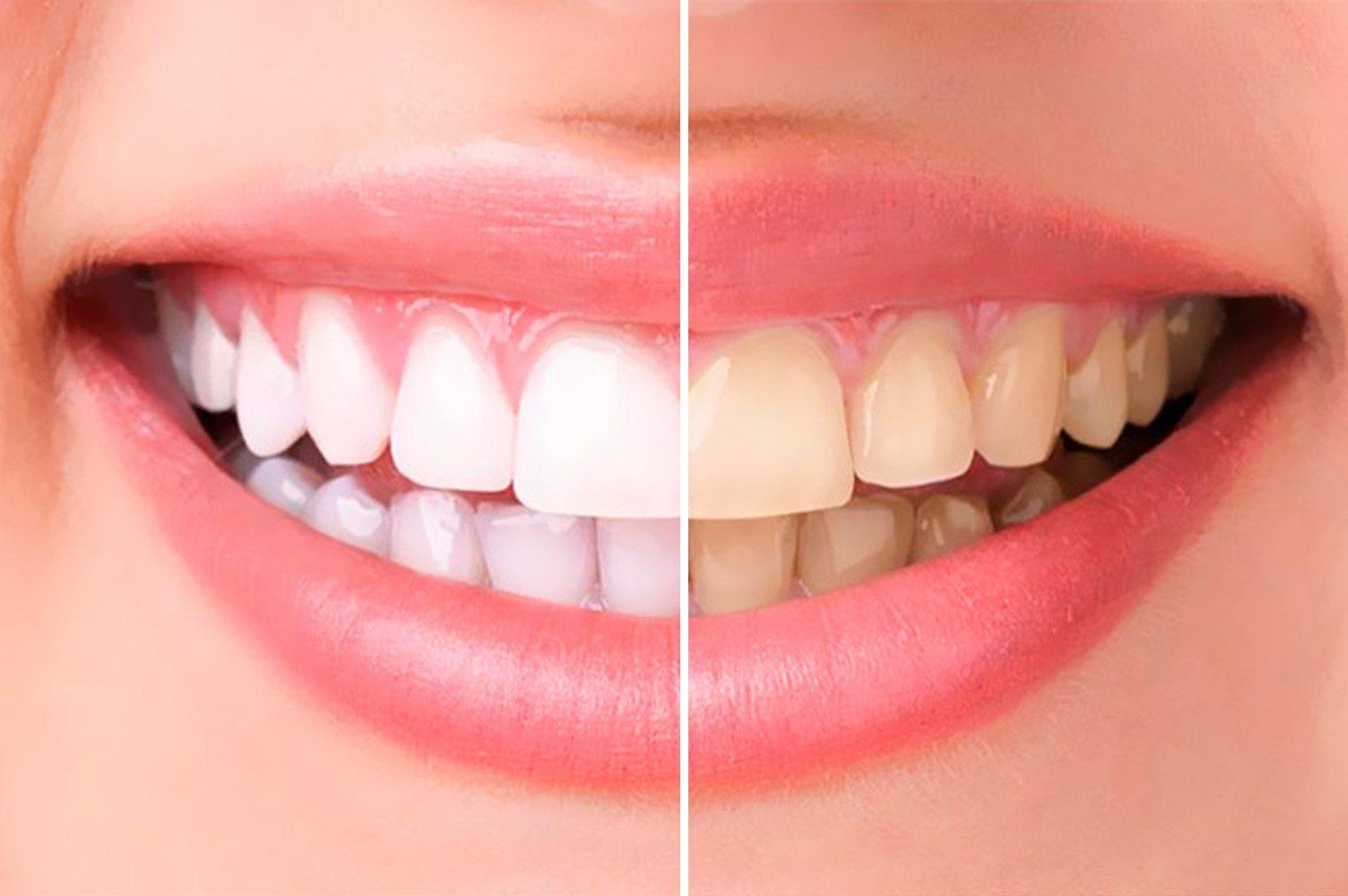 Чем отбеливание зубов в домашних условиях самый лучший способ 64